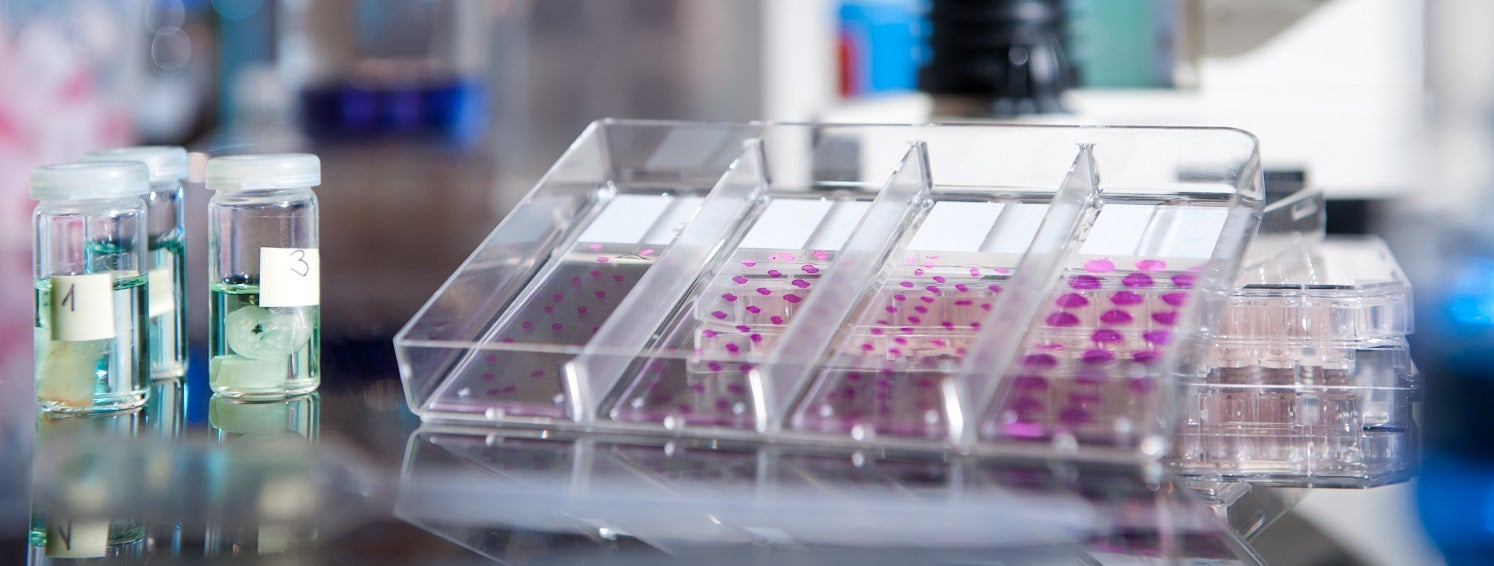 An image of a histology experiment to depict immunosequencing with challenging samples.